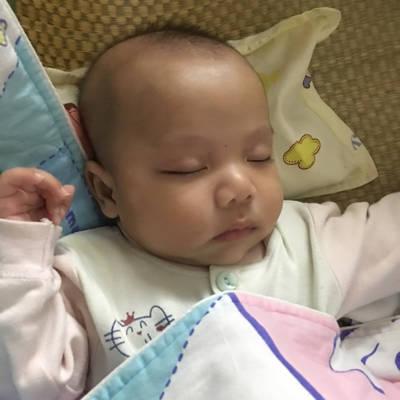 宝宝脸上有一块一块像白斑怎么回事,而什么药