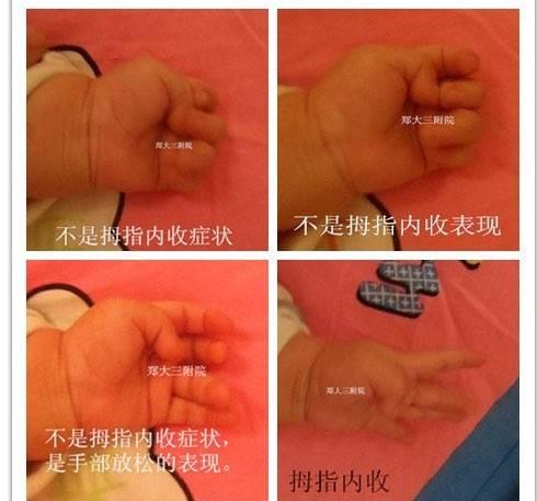 宝宝拇指内扣 我家宝宝4个月了拇指内扣,但是双手经常打开着,