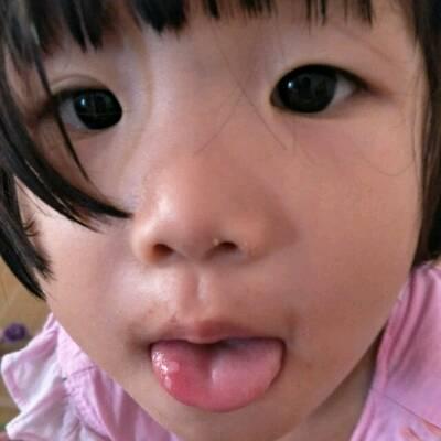 宝宝两岁了最近两天嘴巴里长了好几个溃疡怎麼办,舌头