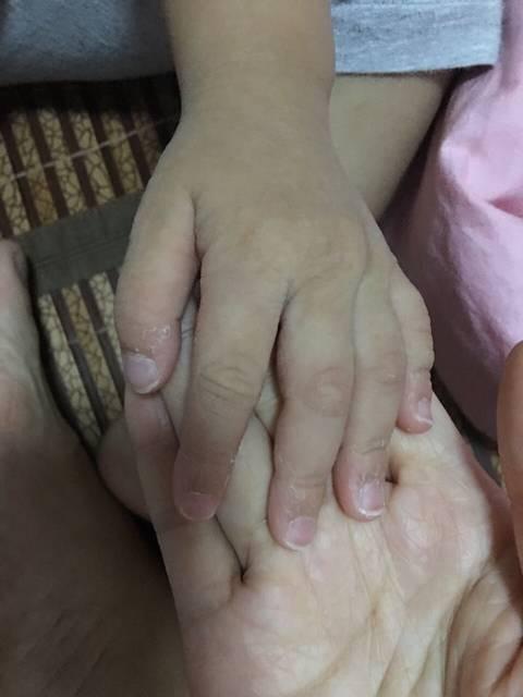 两岁宝宝手指与脚指头脱皮_我家宝宝两周岁2