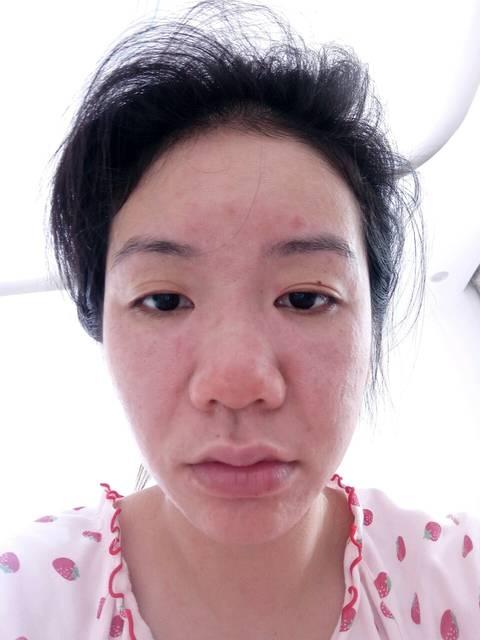 过敏吗_怀孕50天脸部颈部严重过敏,红肿痒,尤