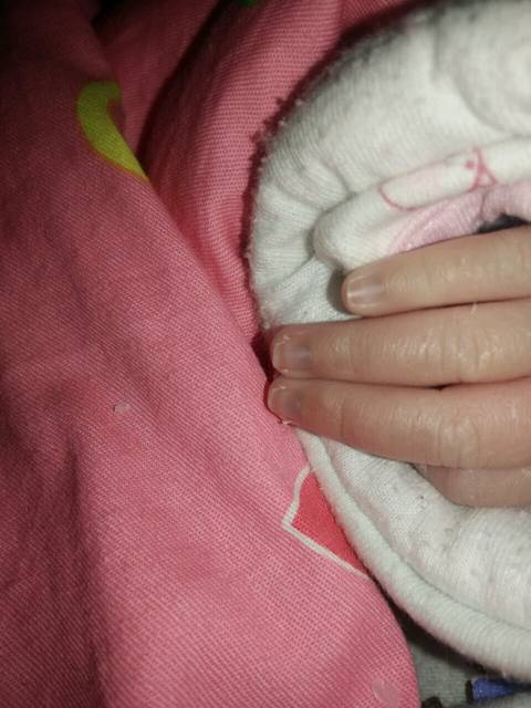 新生儿手指甲发紫是什么情况