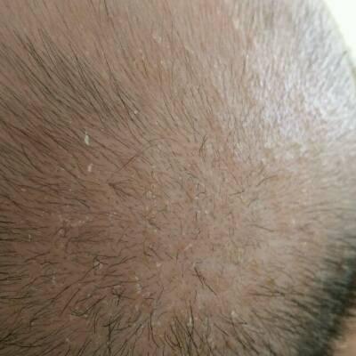 宝宝三个月,头皮上一直有像头皮屑似的东西,宝
