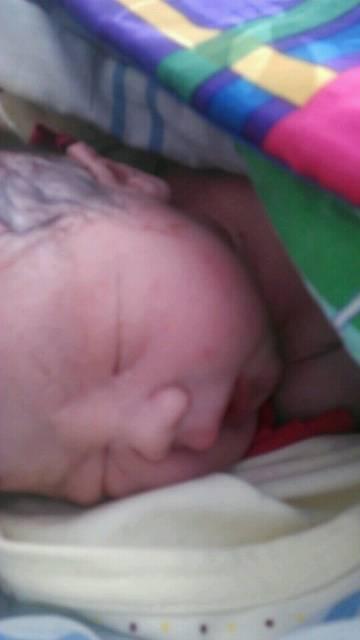 新生儿指甲发紫
