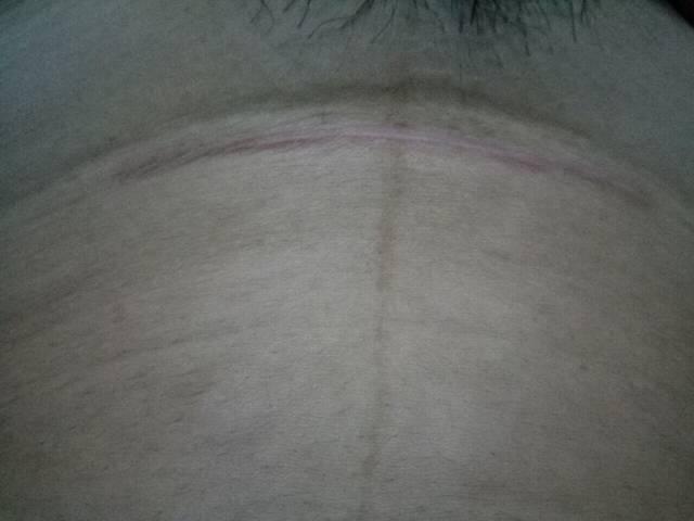 破腹产七个多月刀疤
