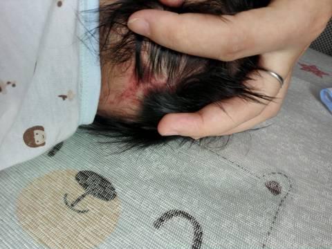 头皮上的血管瘤_突然发现宝宝脖子后面有红色