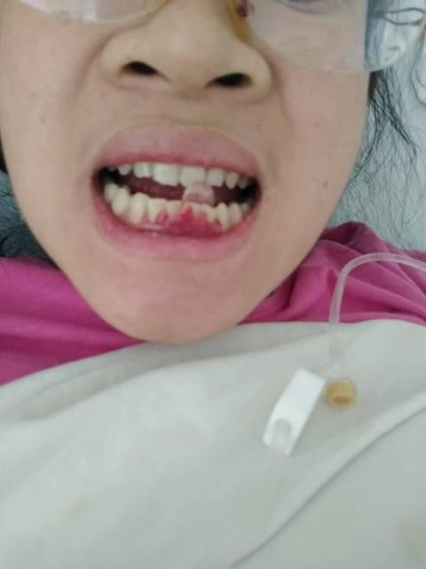 这是牙龈增生不!有牙医不