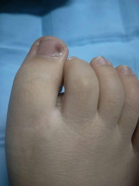 怀孕后脚趾甲上长了一个淤血一样的东西