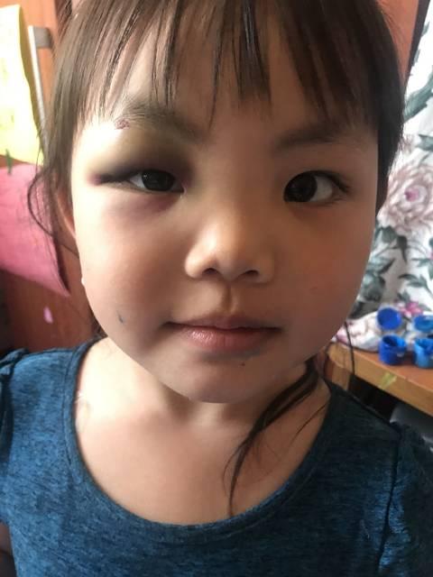 小孩撞到眉头眼睛肿了