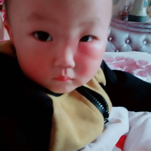 求帮忙!宝宝被蚊子咬到下眼皮,引起水肿了,怎么