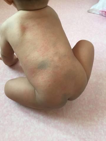 宝宝九个月发烧后三天出疹子了,今天已经是出