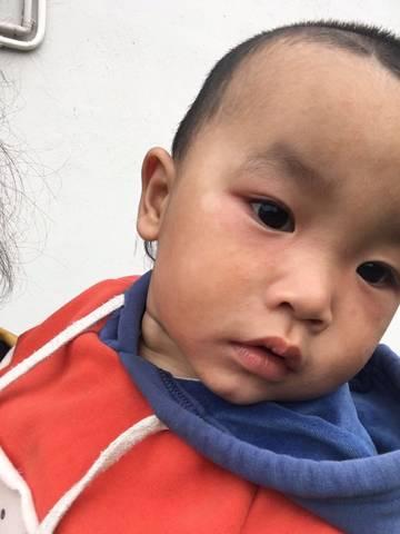 冬天17个月宝宝脸上小一片红小痘痘,还有白斑